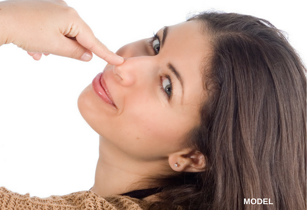 5 Things You Need to Know Before Rhinoplasty