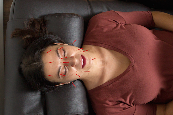 Love Your Health: Modern Acupuncture Helps Couples Look and Feel Beautiful Year Round
